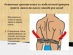 Остановка кровотечения из подключной артерии путём максимального отвода рук наза