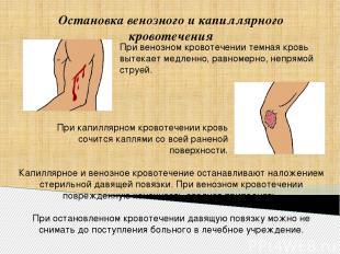 Остановка венозного и капиллярного кровотечения Капиллярное и венозное кровотече
