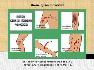 Виды кровотечений Артериальное кровотечение Венозное кровотечение Внутреннее кро