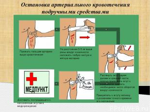 Остановка артериального кровотечения подручными средствами Прижать пальцем артер