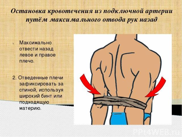 Остановка кровотечения из подключной артерии путём максимального отвода рук назад Максимально отвести назад левое и правое плечо. 2. Отведенные плечи зафиксировать за спиной, используя широкий бинт или подходящую материю.