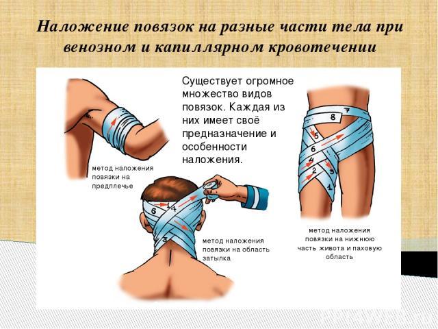 Наложение повязок на разные части тела при венозном и капиллярном кровотечении Существует огромное множество видов повязок. Каждая из них имеет своё предназначение и особенности наложения. метод наложения повязки на предплечье метод наложения повязк…
