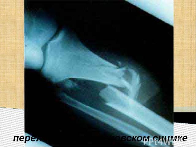 перелом на рентгеновском снимке