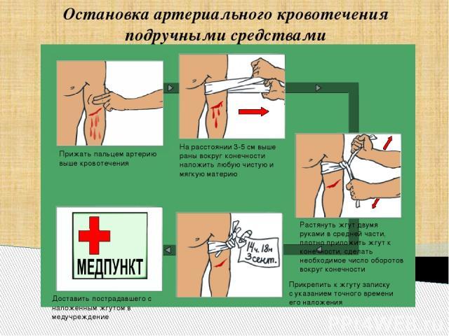 Остановка артериального кровотечения подручными средствами Прижать пальцем артерию выше кровотечения На расстоянии 3-5 см выше раны вокруг конечности наложить любую чистую и мягкую материю Доставить пострадавшего с наложенным жгутом в медучреждение …
