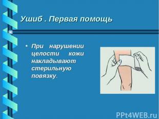 Ушиб . Первая помощь При нарушении целости кожи накладывают стерильную повязку.