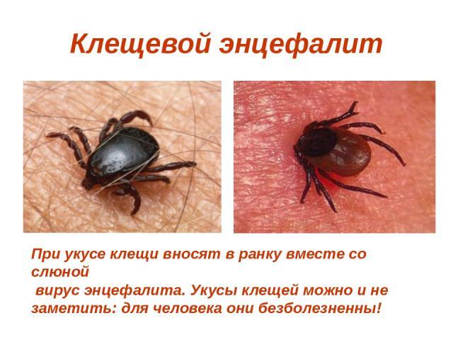 Клещевой энцефалит При укусе клещи вносят в ранку вместе со слюной вирус энцефалита. Укусы клещей можно и не заметить: для человека они безболезненны!