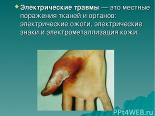 Электрические травмы— это местные поражения тканей и органов: электрические ожо