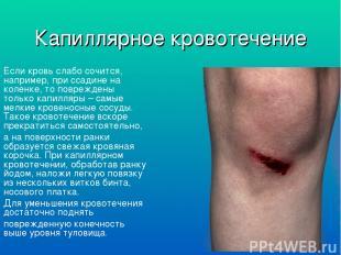 Капиллярное кровотечение Если кровь слабо сочится, например, при ссадине на коле