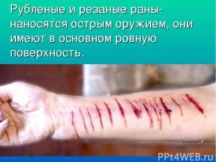Рубленые и резаные раны- наносятся острым оружием, они имеют в основном ровную п