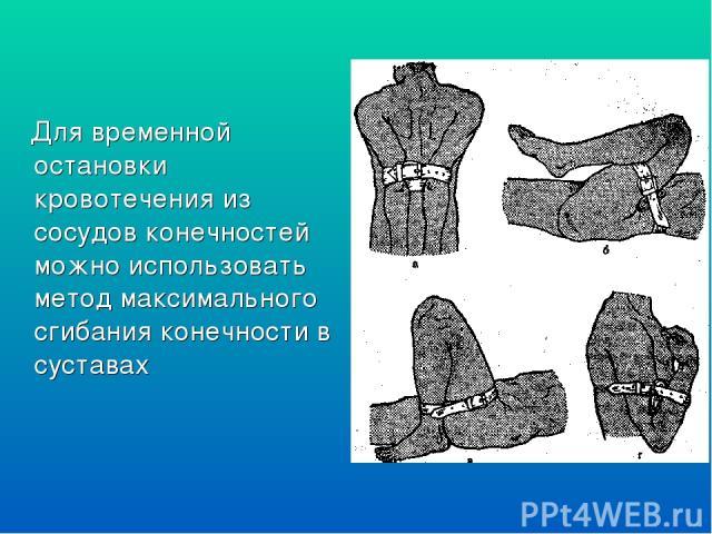 Для временной остановки кровотечения из сосудов конечностей можно использовать метод максимального сгибания конечности в суставах
