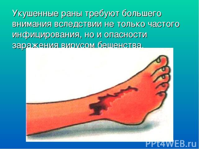 Укушенные раны требуют большего внимания вследствии не только частого инфицирования, но и опасности заражения вирусом бешенства.
