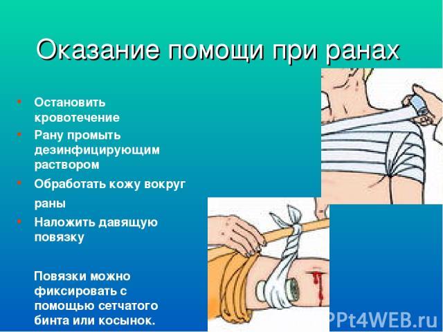 Оказание помощи при ранах Остановить кровотечение Рану промыть дезинфицирующим раствором Обработать кожу вокруг раны Наложить давящую повязку Повязки можно фиксировать с помощью сетчатого бинта или косынок.