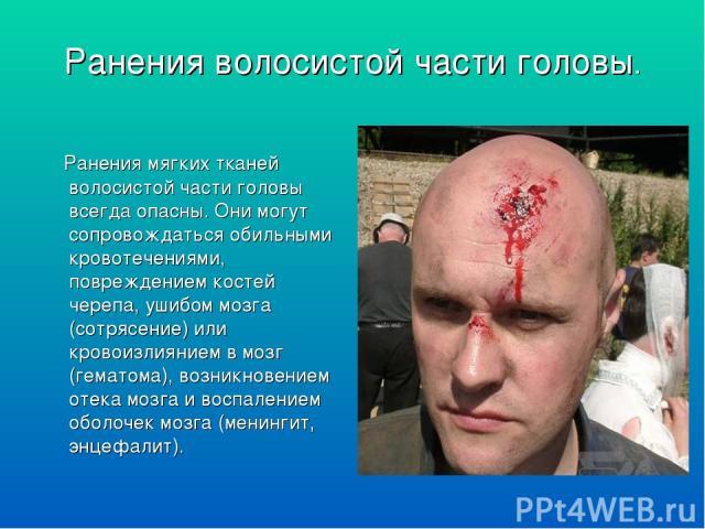 Ранения волосистой части головы. Ранения мягких тканей волосистой части головы всегда опасны. Они могут сопровождаться обильными кровотечениями, повреждением костей черепа, ушибом мозга (сотрясение) или кровоизлиянием в мозг (гематома), возникновени…