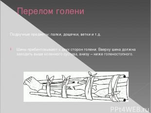 Перелом голени Подручные предметы: палки, дощечки, ветки и т.д. Шины прибинтовыв