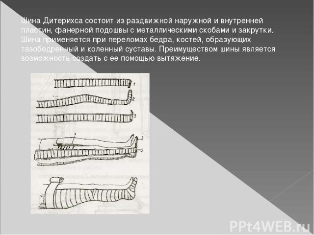 Шина Дитерихса состоит из раздвижной наружной и внутренней пластин, фанерной подошвы с металлическими скобами и закрутки. Шина применяется при переломах бедра, костей, образующих тазобедренный и коленный суставы. Преимуществом шины является возможно…