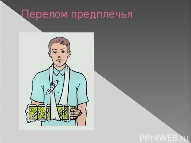 Перелом предплечья