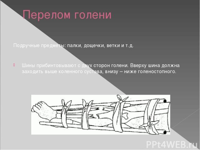 Перелом голени Подручные предметы: палки, дощечки, ветки и т.д. Шины прибинтовывают с двух сторон голени. Вверху шина должна заходить выше коленного сустава, внизу – ниже голеностопного.