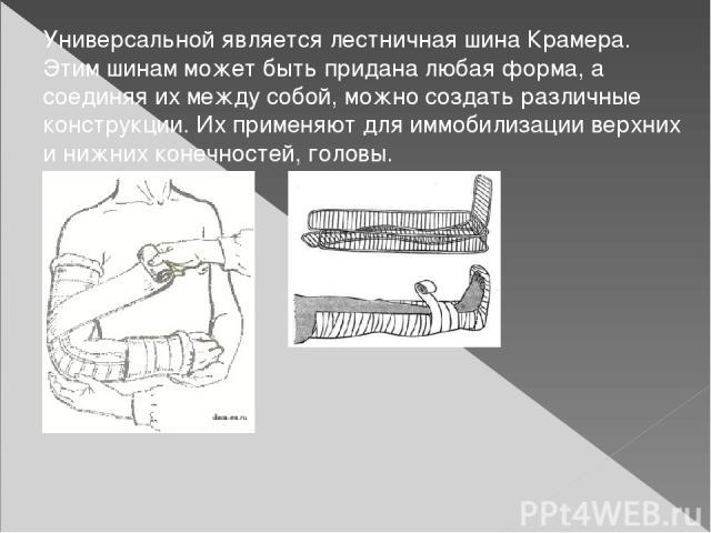Универсальной является лестничная шина Крамера. Этим шинам может быть придана любая форма, а соединяя их между собой, можно создать различные конструкции. Их применяют для иммобилизации верхних и нижних конечностей, головы.