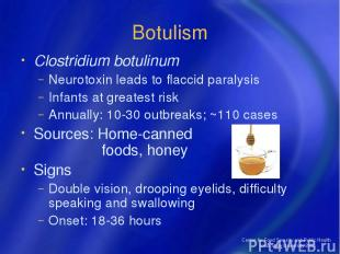 Center for Food Security and Public Health Iowa State University 2004 Botulism C