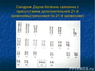 Синдром Дауна-болезнь связанна с присутствием дополнительной 21-й хромосомы(трех