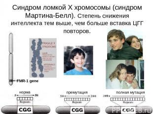 Синдром ломкой Х хромосомы (синдром Мартина-Белл). Степень снижения интеллекта т