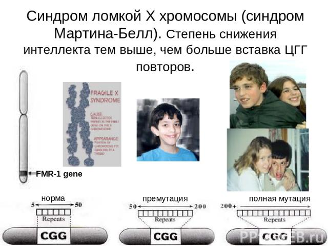 Синдром ломкой Х хромосомы (синдром Мартина-Белл). Степень снижения интеллекта тем выше, чем больше вставка ЦГГ повторов. FMR-1 gene норма премутация полная мутация