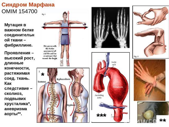 Синдром Марфана OMIM 154700 Мутация в важном белке соединительной ткани – фибриллине. Проявления – высокий рост, длинные конечности, растяжимая соед. ткань. Как следстивие – сколиоз, подвывих хрусталика*, аневризма аорты**. *** ** *