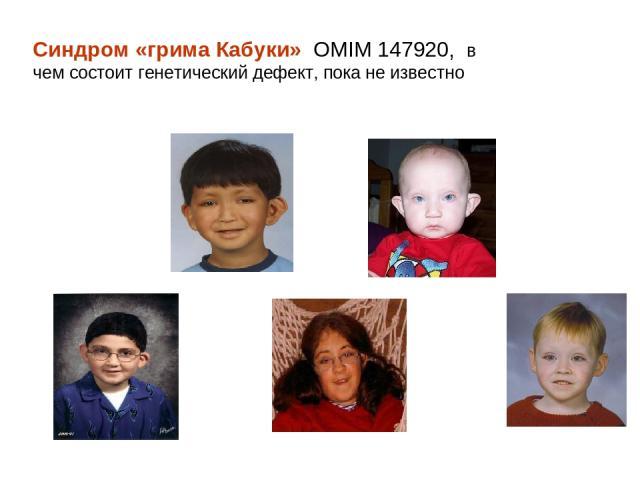 Синдром «грима Кабуки» OMIM 147920, в чем состоит генетический дефект, пока не известно