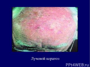 Лучевой кератоз *
