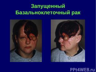 Запущенный Базальноклеточный рак