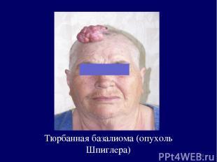 Тюрбанная базалиома (опухоль Шпиглера) *