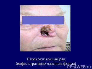 Плоскоклеточный рак (инфильтративно-язвенная форма) *