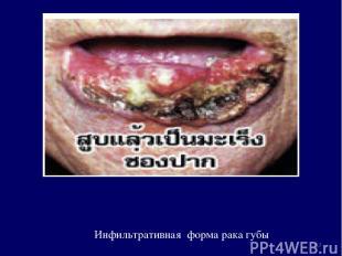 Инфильтративная форма рака губы *