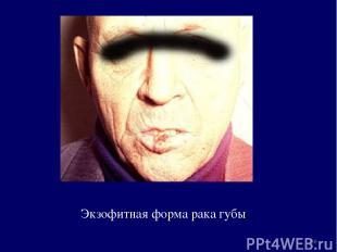 Экзофитная форма рака губы *