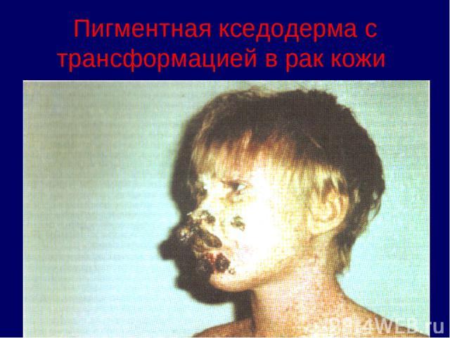 Пигментная кседодерма с трансформацией в рак кожи