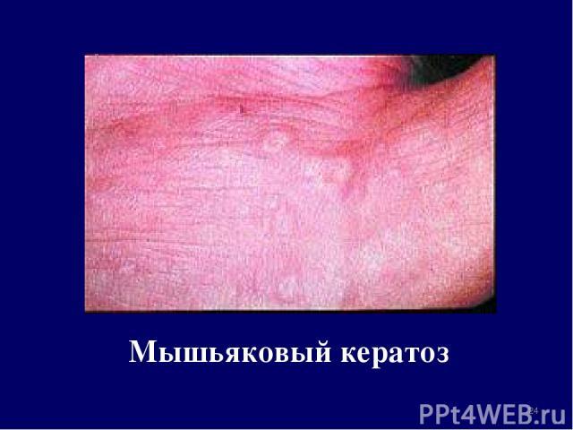 Мышьяковый кератоз *