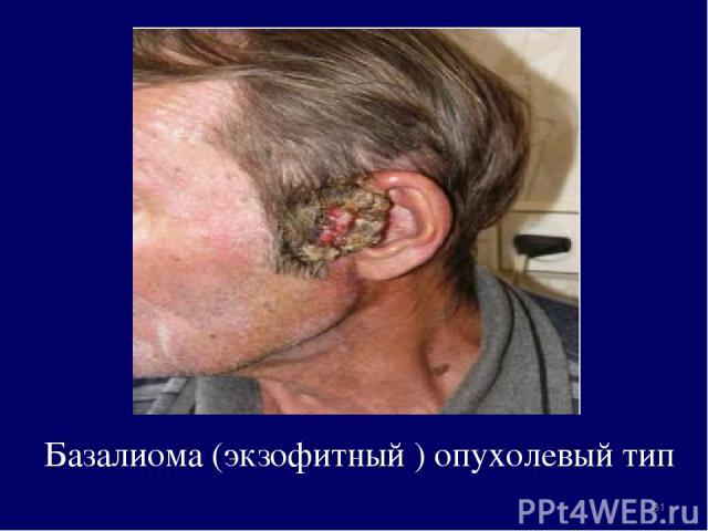 Базалиома (экзофитный ) опухолевый тип *