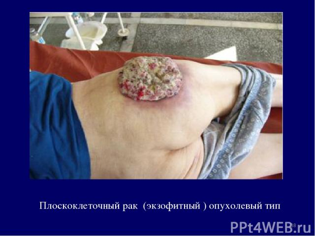 Плоскоклеточный рак (экзофитный ) опухолевый тип *