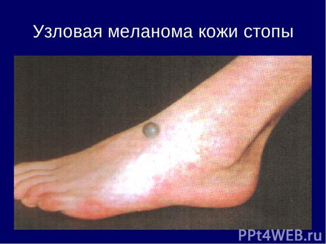Узловая меланома кожи стопы