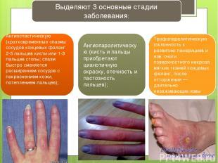 Выделяют 3 основные стадии заболевания: Ангиоспастическую (кратковременные спазм