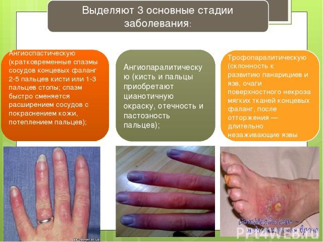 Выделяют 3 основные стадии заболевания: Ангиоспастическую (кратковременные спазмы сосудов концевых фаланг 2-5 пальцев кисти или 1-3 пальцев стопы; спазм быстро сменяется расширением сосудов с покраснением кожи, потеплением пальцев); Ангиопаралитичес…