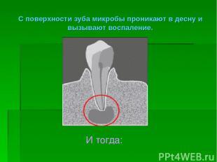 С поверхности зуба микробы проникают в десну и вызывают воспаление. И тогда: