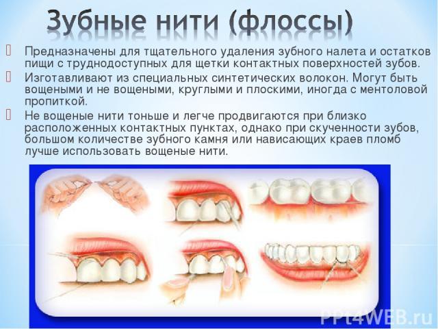 Предназначены для тщательного удаления зубного налета и остатков пищи с труднодоступных для щетки контактных поверхностей зубов. Изготавливают из специальных синтетических волокон. Могут быть вощеными и не вощеными, круглыми и плоскими, иногда с мен…