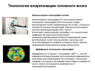 Технологии визуализации головного мозга Компьютерная томография головы Компьютер