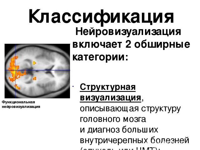 Классификация Нейровизуализация включает 2 обширные категории: Структурная визуализация, описывающая структуру головного мозга идиагнозбольших внутричерепных болезней (опухольилиЧМТ); Функциональная нейровизуализация, используемая для диагностик…
