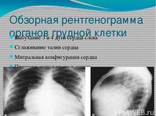 Обзорная рентгенограмма органов грудной клетки Выбухание 3 и 4 дуги сердца слева