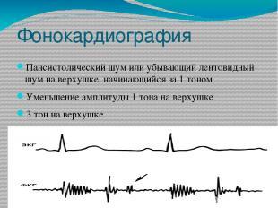 Фонокардиография Пансистолический шум или убывающий лентовидный шум на верхушке,