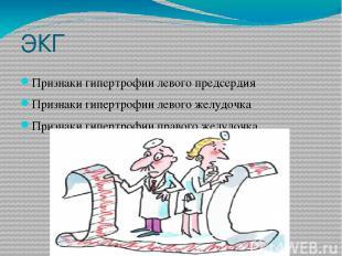 ЭКГ Признаки гипертрофии левого предсердия Признаки гипертрофии левого желудочка