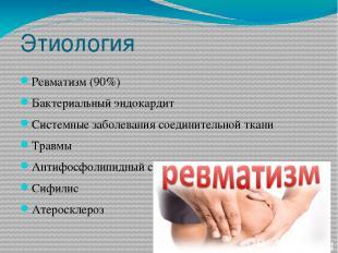 Этиология Ревматизм (90%) Бактериальный эндокардит Системные заболевания соедини