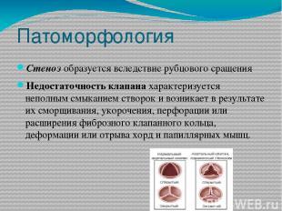 Патоморфология Стенозобразуется вследствие рубцового сращения Недостаточность к